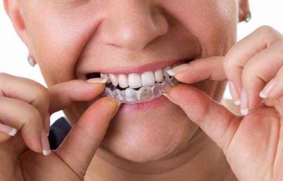Prothèse dentaire conjointe Viry-Châtillon